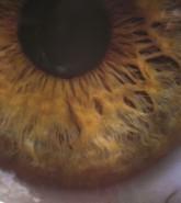 BSc (Hons) Vision Science